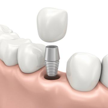 Dental implant placement l Burien Dental Clinic Burien WA