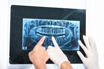 Digital X-Ray of dental patients mouth I teeth grinding burien WA
